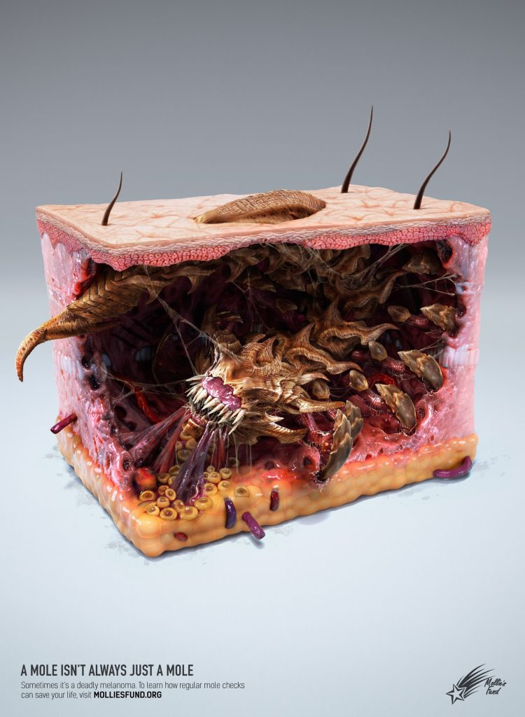 05melanoma_monsters_insect_aotw